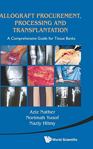 9789814291187: Allograft Procurement, Processing and Transplantation: A Comprehensive Guide for Tissue Bank