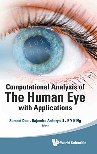 Computational Analysis of the Human Eye with: Dua, Sumeet, Rajendra