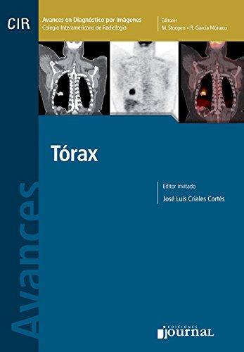 9789871259298: Avances en Diagnóstico por Imágenes: Tórax (Spanish Edition)