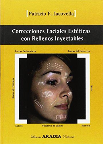 9789875700642: Correcciones Faciales Esteticas Con Rellenos Inyectables