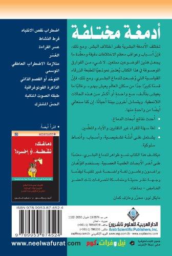 9789953874524: Brains That Work a Little Bit Differently (Arabic Edition)
