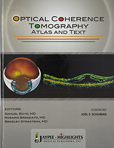 9789962678045: Optical Coherence Tomography. Atlas and Text