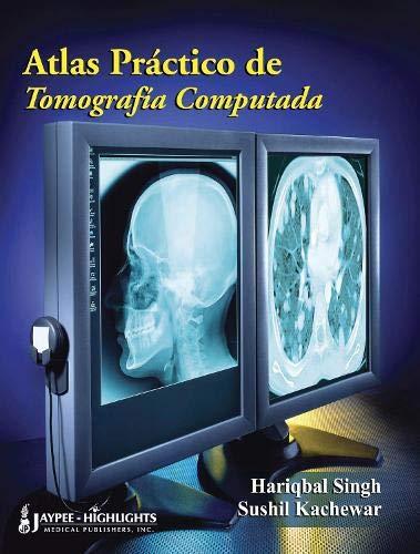 9789962678427: Atlas Practico de Tomografia Computada