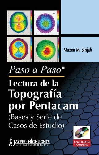 9789962678472: Paso a Paso - Lectura de la Topografia por Pentacam (Bases Y Serie De Casos De Estudio) (Spanish Edition)