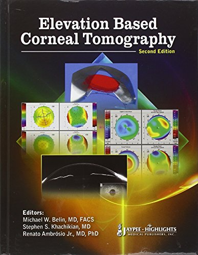 Elevation Based Corneal Tomography: Belin, Michael W