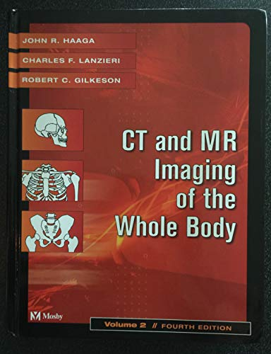Ct and Mr Imaging of the Whole Body: Lanzieri, Charles F.; Gilkeson, Robert C.