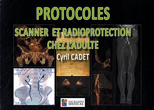 Protocoles Scanner Et Radioprotection Chez L'adulte Broche – 21 Octobre 2015 (French ...